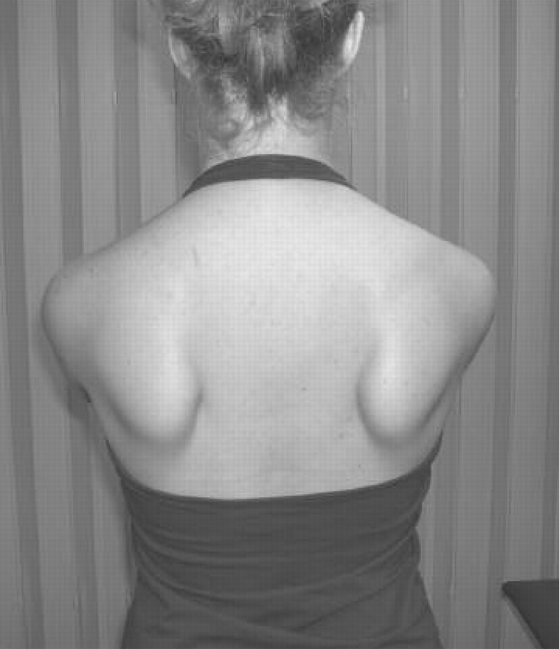 http://adriancrowe.files.wordpress.com/2011/10/winging-scapula1.jpg